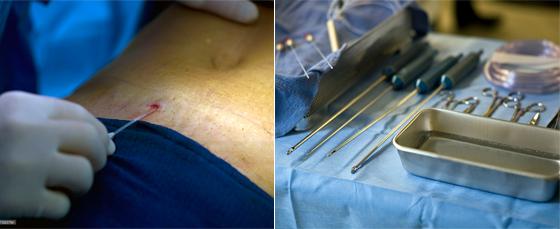 Hút mỡ không phải phương pháp giảm cân - chỉ là giải pháp giảm béo tạm thời 2