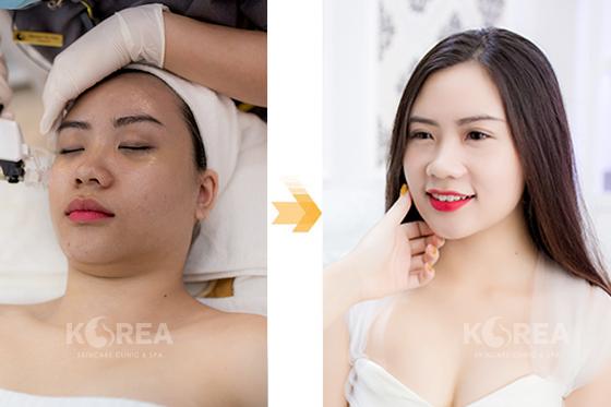Siêu cấy Collagen tươi - giải pháp tối ưu giúp phụ nữ 25+ kiến tạo làn da không tuổi 4