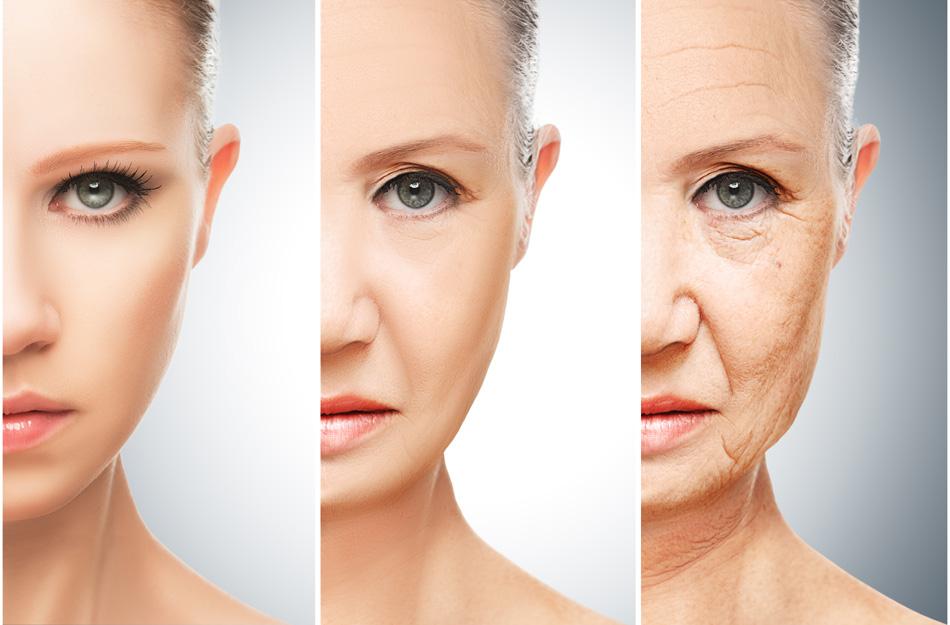 Xóa sổ nếp nhăn, thu gọn cơ mặt chảy xệ cho phụ nữ trung niên không khó 1