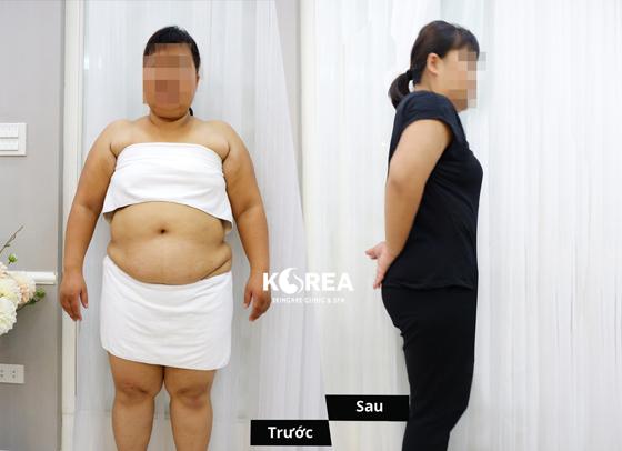 Giảm béo Max Thin Lipo vì sao nên? 4