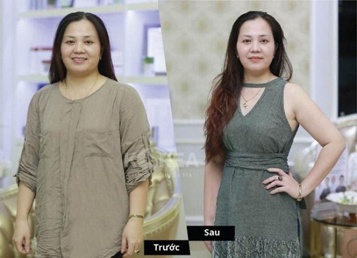 Lớn tuổi, cô Thanh Huyền lựa chọn Max Thin Lipo để đảm bảo an toàn không đau, không phẫu thuật