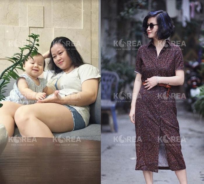 Giống như nhiều chị em khác chị Dương cũng lo sợ không biết giảm béo Max Thin Lipo có đau không nhưng kết quả đã khiến chị bất ngờ