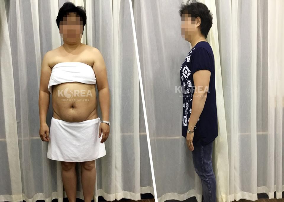 Hết hẳn máu mỡ sau 1 lần giảm béo với Max Thin Lipo 3