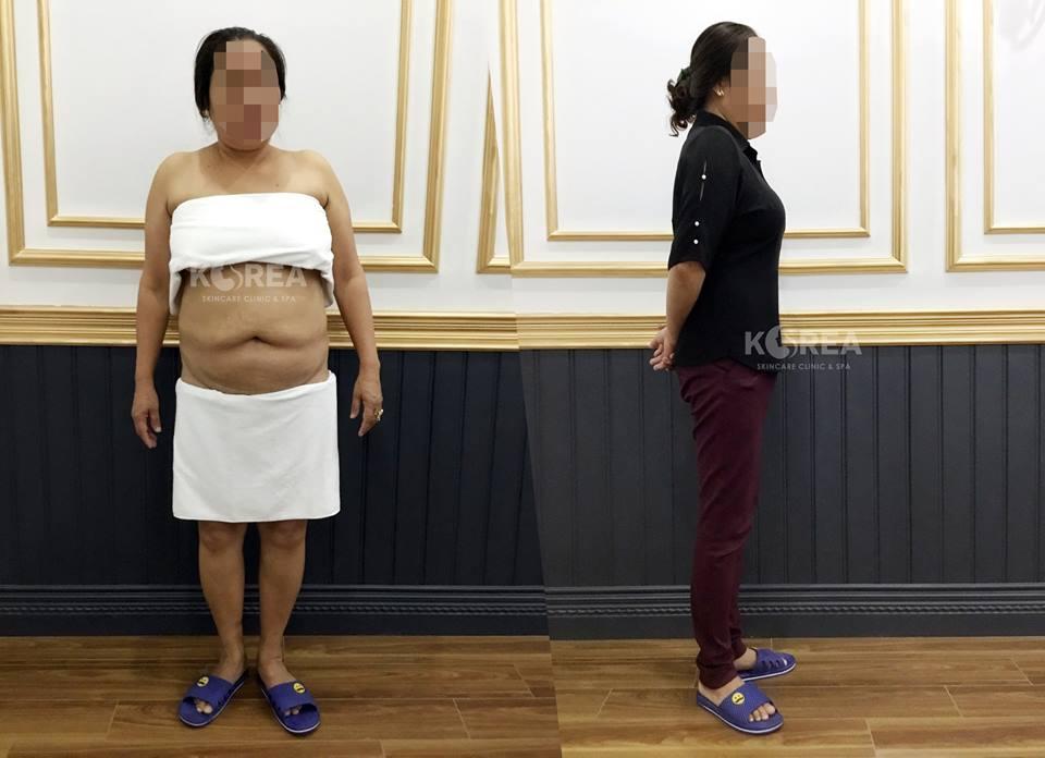 Giảm béo Max Thin Lipo - giúp ngăn ngừa biến chứng xương khớp, tim mạch 1