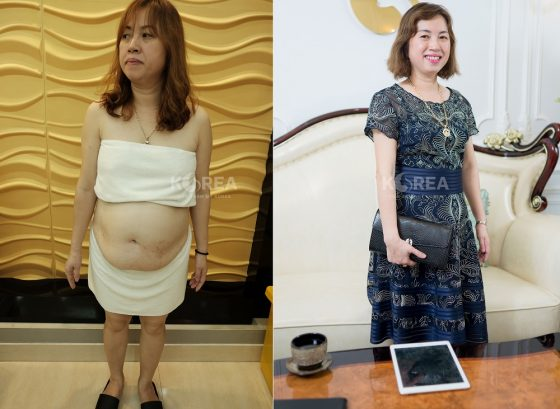 """""""Gặp chuyên gia, nhận quà lớn"""" khi tham dự Hội thảo Giảm béo Hàn Quốc 6"""