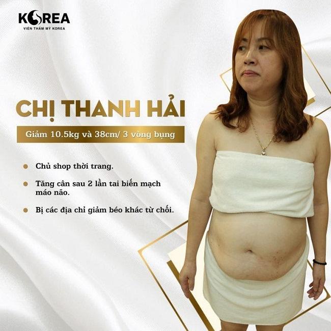 Không chỉ thừa cân mỡ của chị Hải tập trung ở vùng bụng kéo theo nhiều căn bệnh nguy hiểm