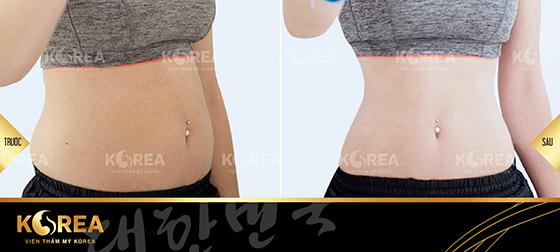 Giảm mỡ Korea Slim Extra 2