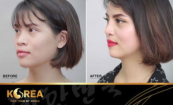 Nâng mũi S-line Perfect khắc phục hiệu quả vấn đề: mũi tẹt, đầu mũi to, cánh mũi rộng,...