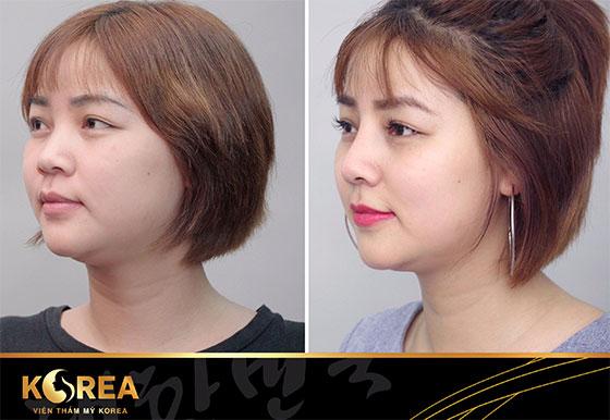 """Nâng mũi S-line Perfect là phương pháp tạo hình sống mũi cao chuẩn dáng S-line """"vạn người mê""""."""