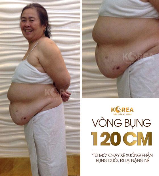 """""""71 tuổi, tôi vẫn đi giảm béo"""" 1"""