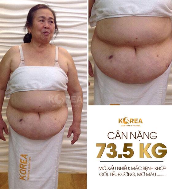 """""""71 tuổi, tôi vẫn đi giảm béo"""" 2"""