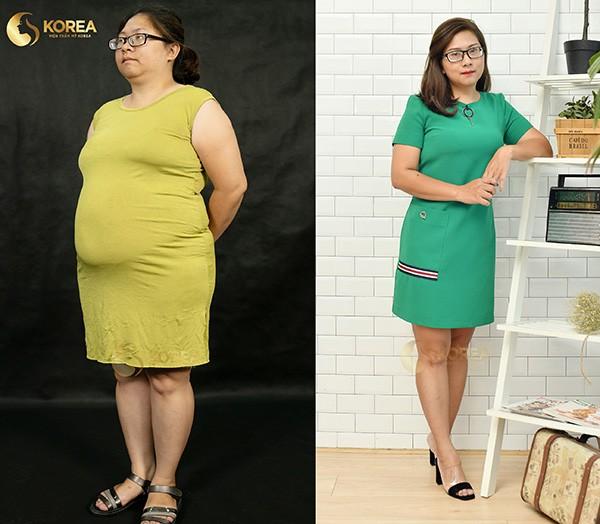 """Những ca giảm béo """"kinh điển"""" biến đổi ngoại hình 4"""