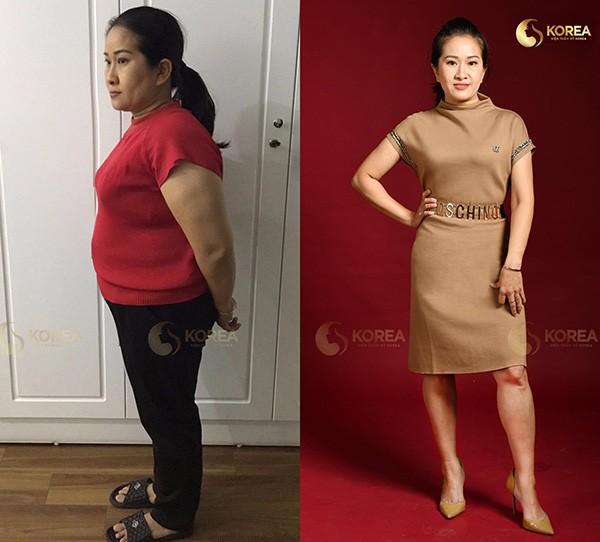 """Những ca giảm béo """"kinh điển"""" biến đổi ngoại hình 5"""