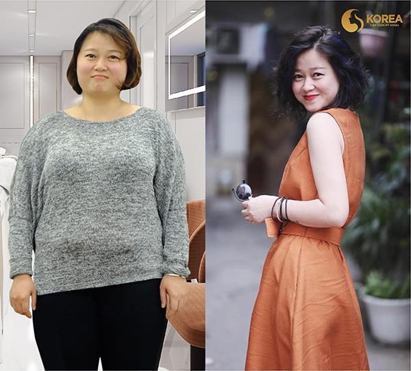 """Những ca giảm béo """"kinh điển"""" biến đổi ngoại hình 7"""