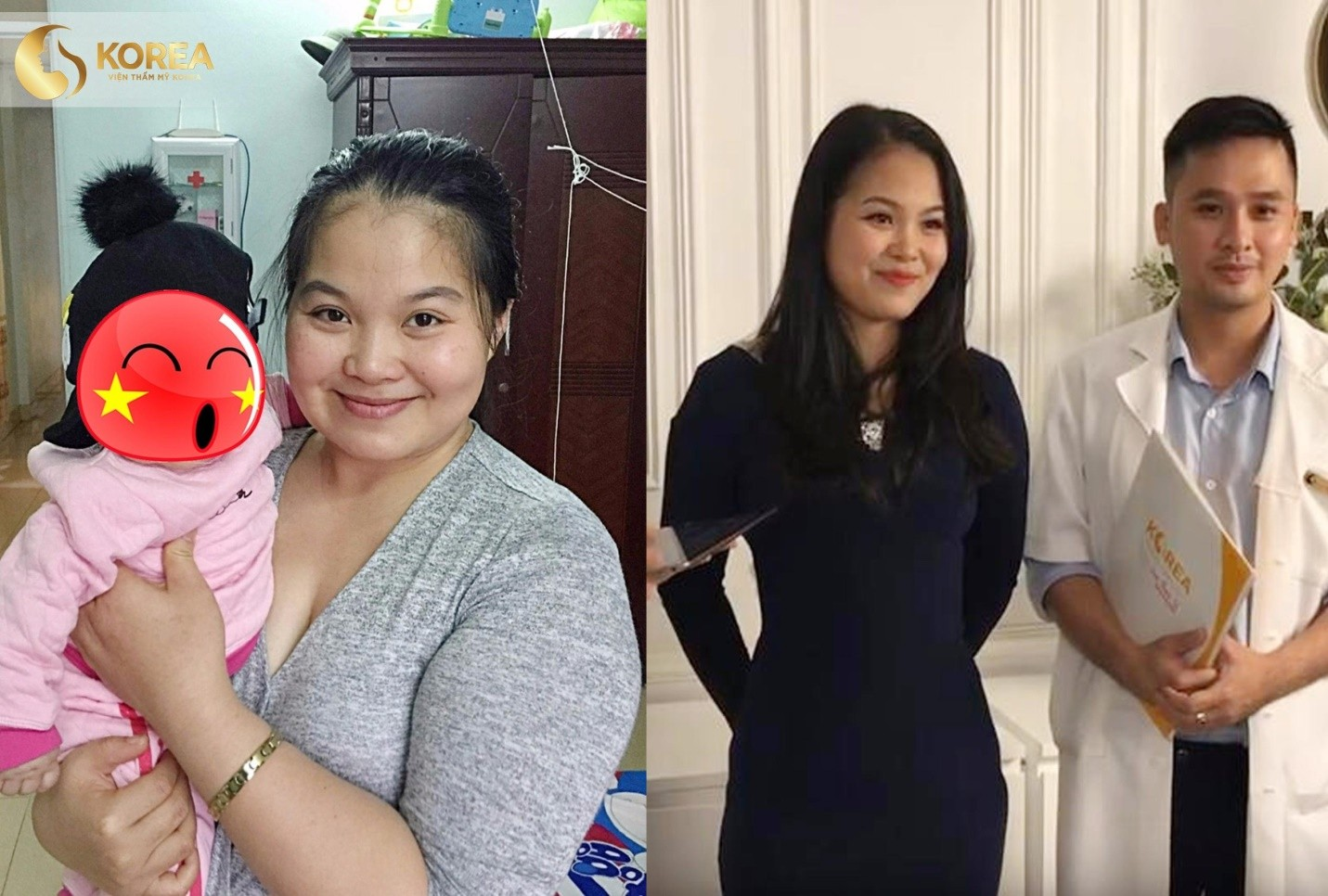 2 lần sinh là 2 lần trầm cảm vì béo – mẹ đơn thân tìm được hạnh phúc mới sau liệu trình tại Korea 3