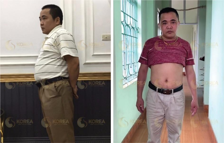 Vợ ép tôi giảm cân vì không muốn trở thành góa bụa! 2