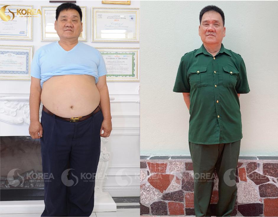 Giảm Cân Cho Nam