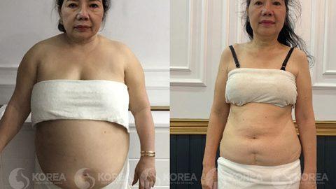 Cách giảm cân cho người cao tuổi an toàn