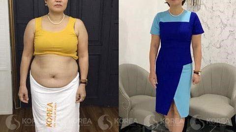 Địa chỉ Thẩm Mỹ giảm béo uy tín