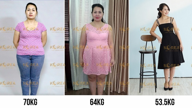 Hình ảnh của chị Trang sau khi giảm gần 15kg sau khi cấy tinh chất Max Thin Nanomax