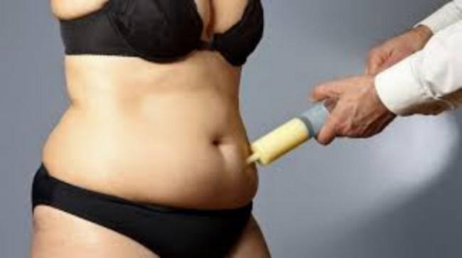 Hút mỡ bụng cũng là một trong các phương pháp giảm béo hiện nay đang được nhiều người quan tâm