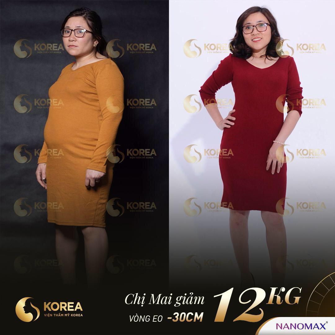 Chị Mai đã giảm được 12kg sau khi giảm béo bằng công nghệ Max Thin Lipo Korea