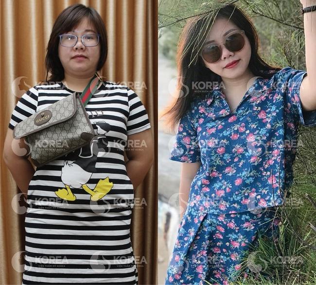 Chị Hà là một trong những hiệu quả về giảm cân ở Viện thẩm mỹ Korea thành công 16kg sau khi sử dụng Max Thin Nanomax