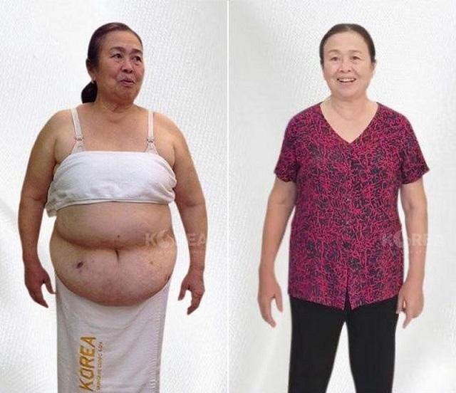 Cô Hồng giảm cân thành công 11kg mỡ thừa trong vòng 1 tháng