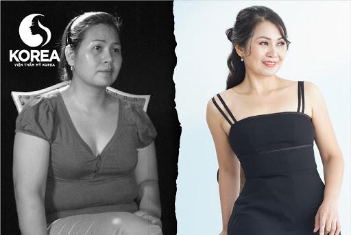 Chị Trang - khách hàng giảm béo rất thành công tại VTM Korea