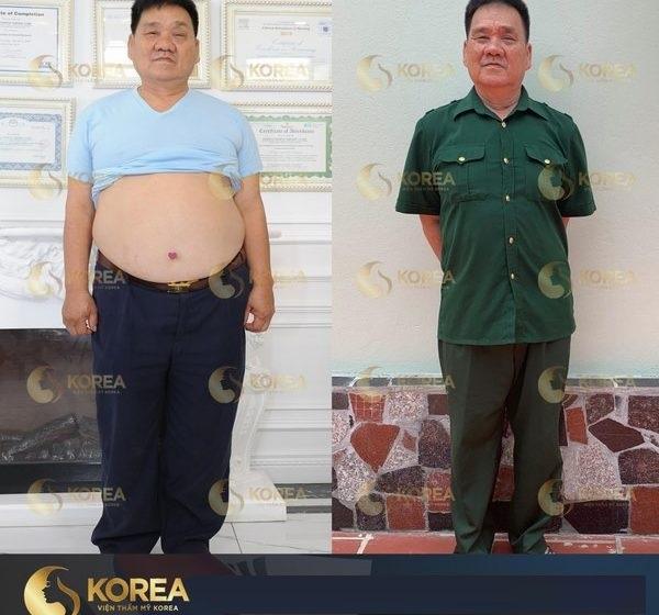 Max Thin Nanomax là công nghệ giảm mỡ bụng cho nam nhanh trong 1 tuần đang rất được tin cậy