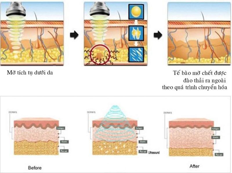 Max Thin Nanomax sẽ tác động trực tiếp vào mô tế bào mỡ và tiến hành phân tách, đốt cháy chúng nhanh chóng