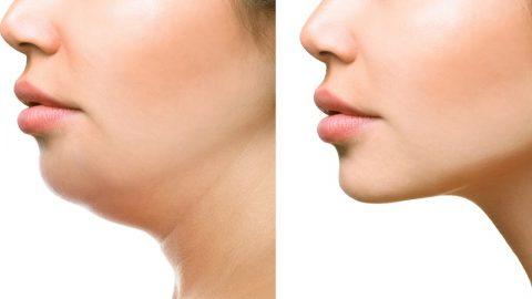 13 cách giảm mỡ cổ tại nhà