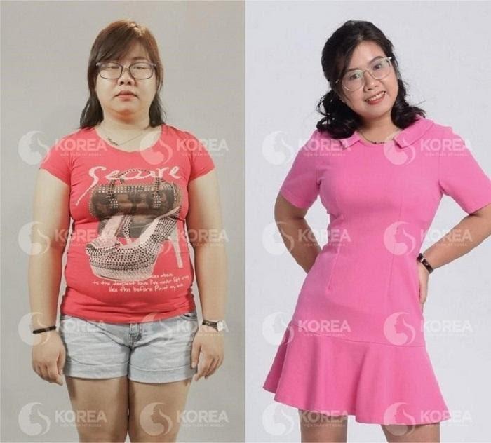 Chị Hồng Hà trước và sau khi giảm cân bằng công nghệ Max Thin Lipo