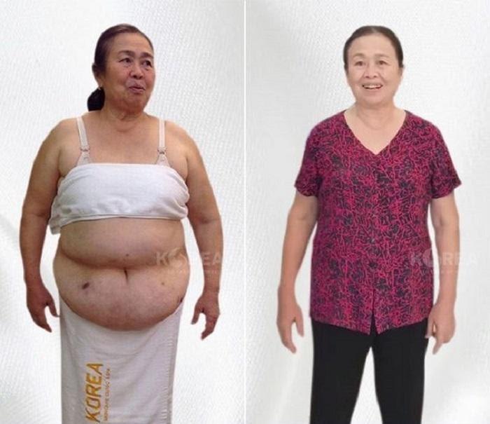 Max Thin Lipo giúp cô Hồng giảm cân hiệu quả dù có nhiều bệnh lý nền