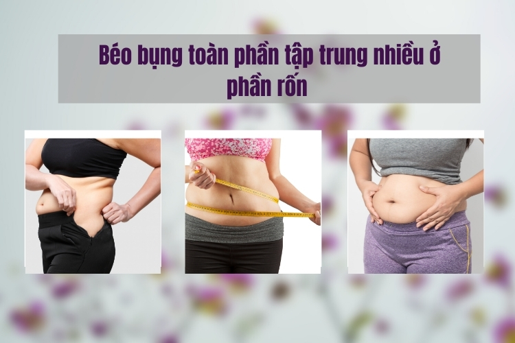 Mỡ bụng toàn phần là một trong các loại béo bụng thường gặp ở chị em, đặc biệt là sau sinh