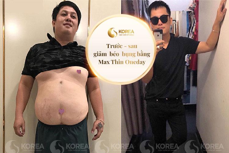 Giảm béo bụng cho nam bằng công nghệ Max Thin Oneday cực nhanh và an toàn