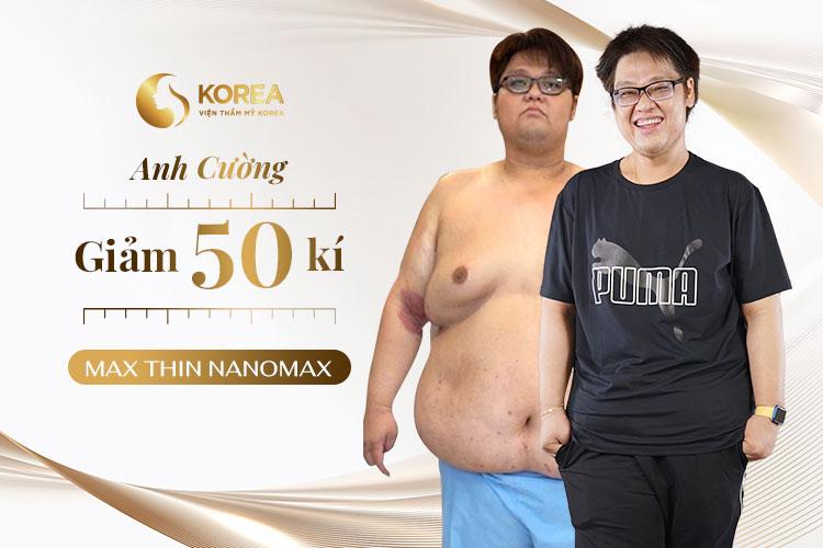 Mới chỉ đi được 2/3 liệu trình Max Thin Nanomax, anh Cường giảm 50kg và 60cm/ vòng