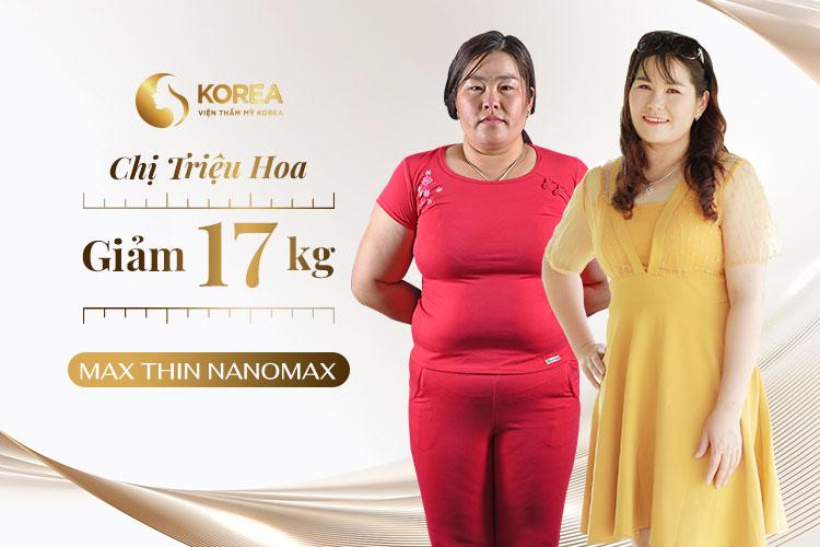 Chị Triệu Hoa giảm 17kg sau khi kết thúc liệu trình Max Thin Nanomax