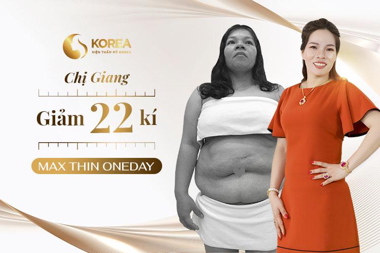 Hình ảnh trước - sau của chị Hà sau khi giảm 22kg nhờ Max Thin Oneday