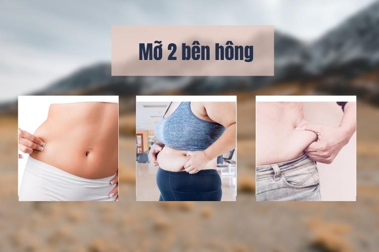 Mỡ dồn sang 2 bên hông cũng là tính trạng béo bụng phổ biến
