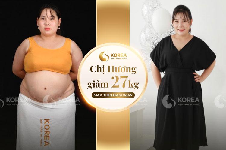 Chị Hương đã giảm thành công 27kg sau liệu trình Max Thin Nanomax