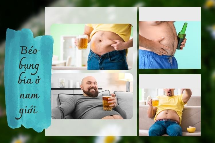 Đây là loại béo bụng phổ biến ở nam giới