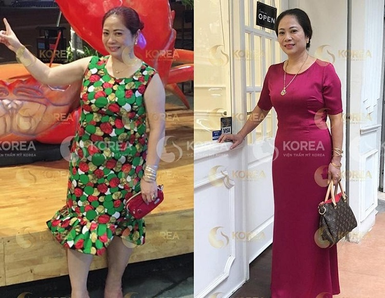 Cô Thái (Sơn Tây) thay đổi ngoạn mục sau khi giảm béo với Max Thin Lipo