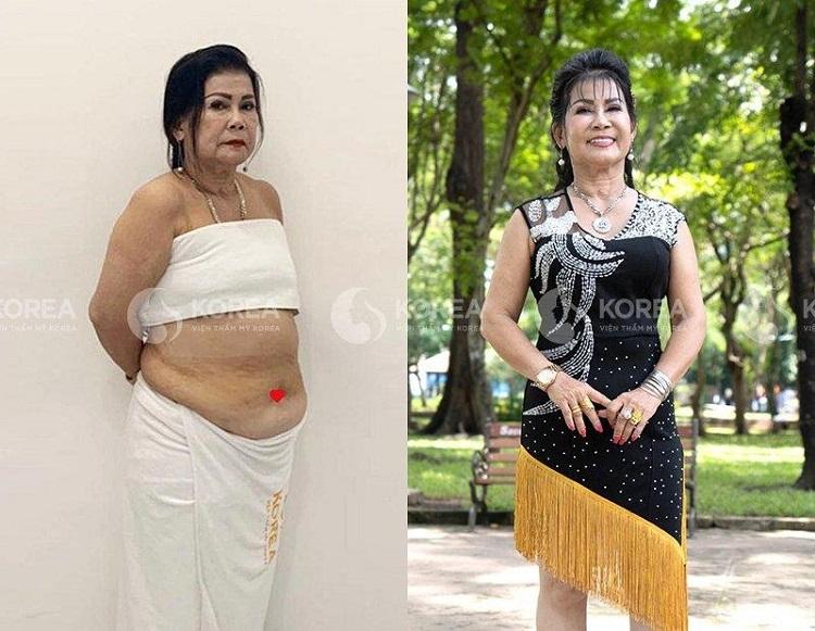 Đúng đắn lựa chọn Max Thin Lipo giảm cân an toàn cho người cao tuổi cô khách không chỉ giảm cân mà còn khỏe mạnh tham dự nhóm nhảy