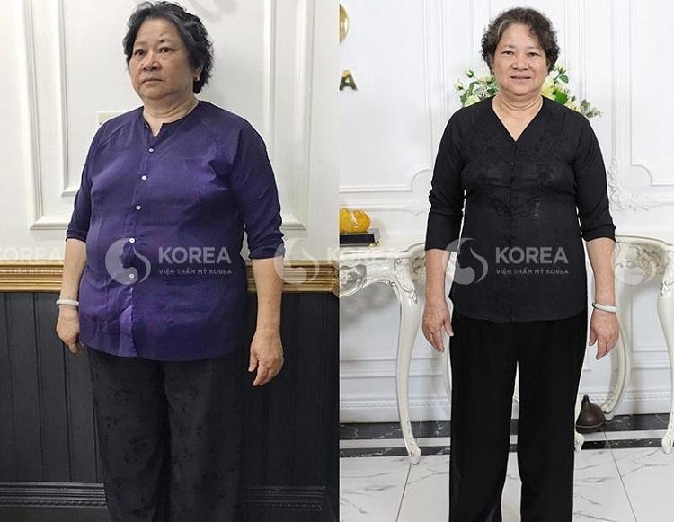 Nhờ giảm béo bằng Max Thin Lipo cô không chỉ thon gọn hơn mà còn khỏe mạnh hơn