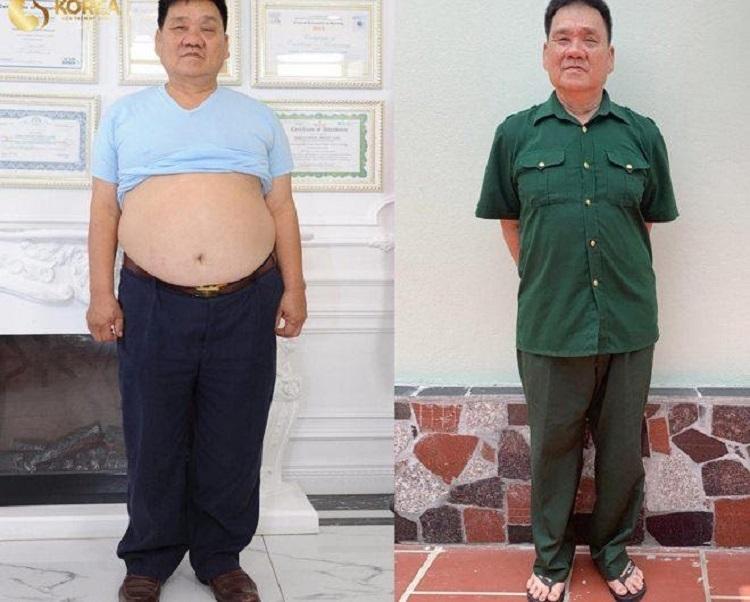 Bác Hoàng cựu chiến binh khổ sở vì béo phì và bệnh tật đã giảm cân hiệu quả, an toàn với Max Thin Lipo