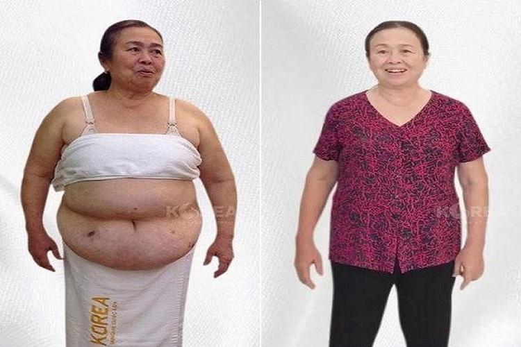 Cô Hà hoàn toàn cải thiện sức khỏe sau khi giảm cân bằng công nghệ Max Thin Oneday