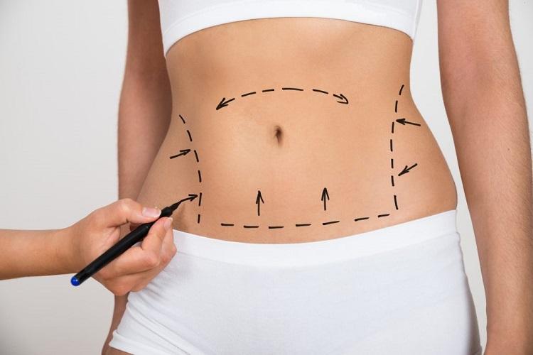 Phẫu thuật dạ dày thu nhỏ bụng là cách nhiều người chọn để giảm béo