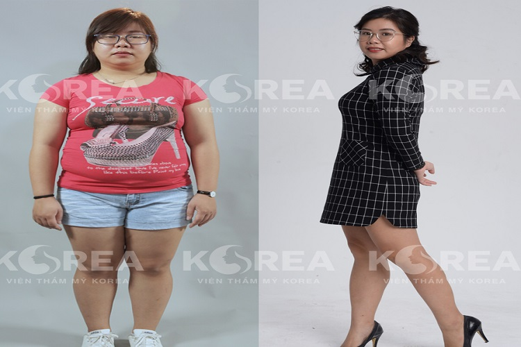 Giảm béo bằng Max Thin Oneday không cần bỏ thời gian nghỉ dưỡng hay chờ phục hồi nào