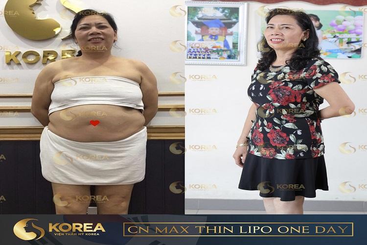 Cô Hiền sau khi thực hiện giảm béo Max Thin Oneday